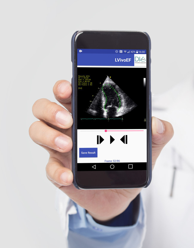 DiA's automated tools for ultrasound analysis on mobile devices