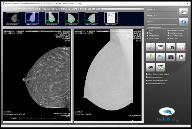 MatrixRay view of 3D Tomo Mammography Images. Edit, mask, annotate, and exchange images along with patient data with no up front costs or contracts. Print to DICOM and many more features included at no extra cost for professionals and institutions. More than 700 sites and thousands of professionals depend on MatrixRay everyday from trauma cases to building a larger referral base of medical experts in the community.