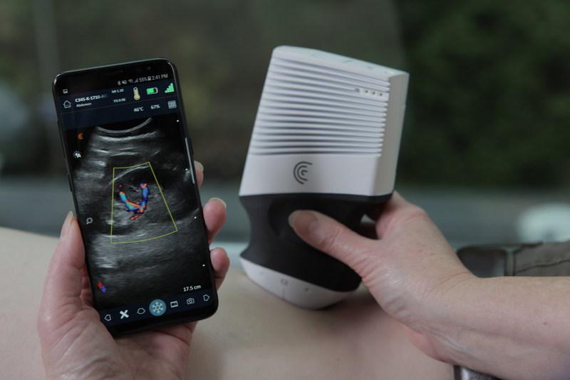 Clarius C3 Wireless Scanner