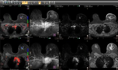 IntelliSpace Portal 10 has been expanded with the DynaCAD Breast solution through integration with InVivo.