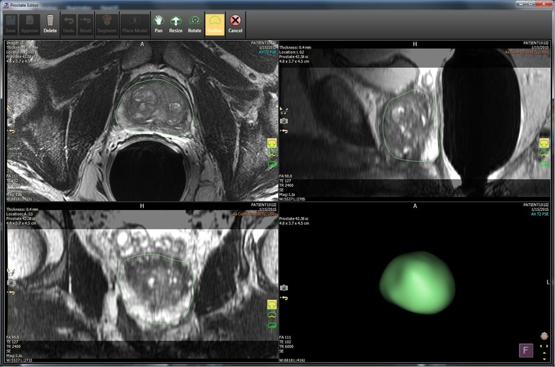 IntelliSpace Portal 10 has been expanded with the DynaCAD Prostate solution through integration with InVivo.
