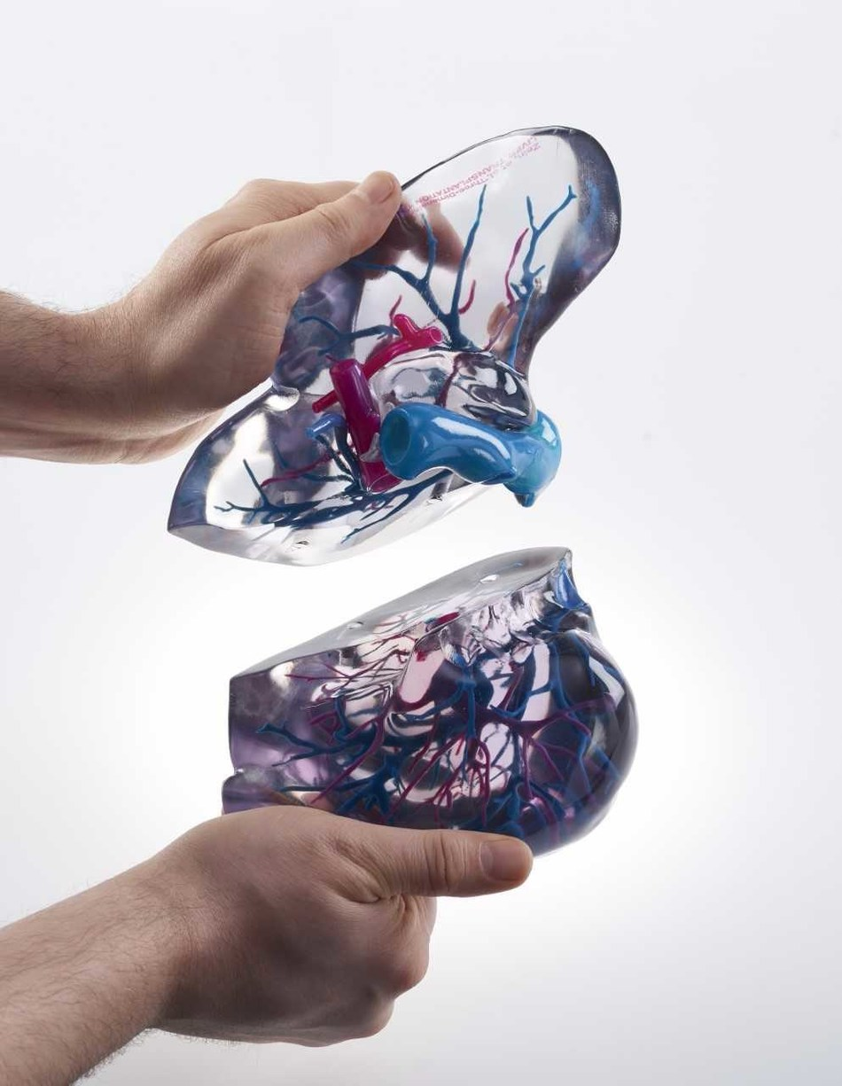 Stratasys 3D Printed medical model built with PolyJet technology. This 3D printed liver model can be used for live donor liver transplants. These 3D printed medical models mitigate risks by enabling physicians to see hidden critical structures.