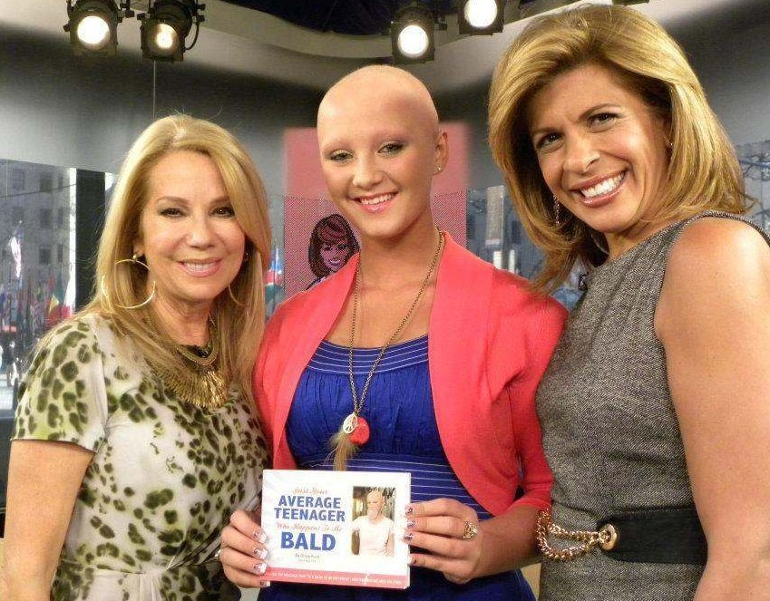 Movoto's Sandy Rusk Raises Awareness About Alopecia