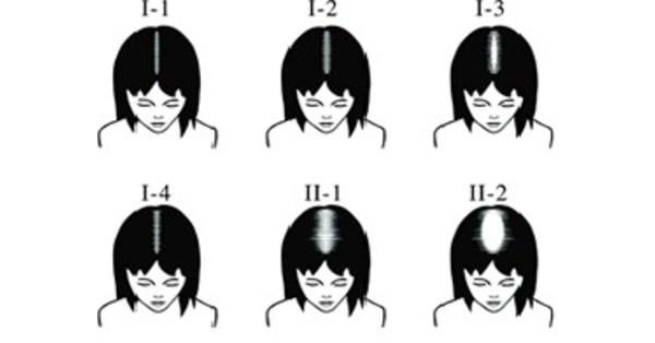 Kerastem Reports Successful US Phase II Hair Growth