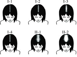 Female Grades I-II