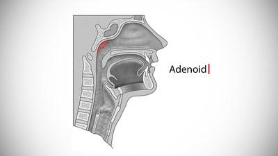 Adenoid (PRNewsfoto/Eurocine Vaccines AB)