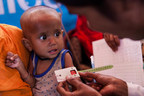 Minara, 10 months, held by his mother Jaheda Begum, 30, has his upper arm measured, indicating that he is suffering from Severe Acute Malnutrition (SAM) at an Outreach Therapeutic Center (OTP) in Balukhali makeshift camp, Cox's Bazar District, Bangladesh, Monday 4 December 2017. © UNICEF/UN0151416/Brown (CNW Group/UNICEF Canada)
