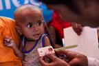 La mesure de la circonférence du bras de Minara, 10 mois, indique qu'il souffre de malnutrition sévère aiguë, dans un centre thérapeutique provisoire du camp de fortune de Balukhali, dans le district de Cox's Bazar, au Bangladesh, le 4 décembre 2017. © UNICEF/UN0151416/Brown (Groupe CNW/UNICEF Canada)