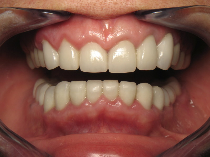 Teeth treated with traditional dental crowns that have caused unhealthy, inflamed gums