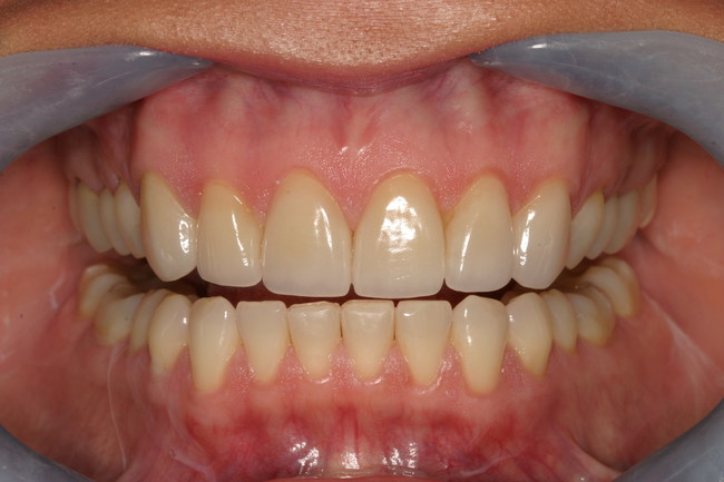 Healthy gums and healthy teeth treated with supra-gingival dentistry