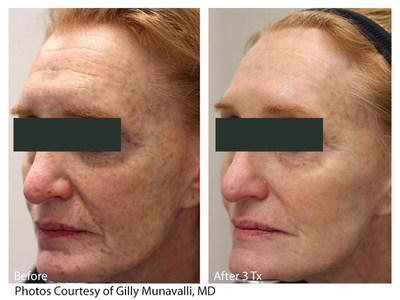 LaseMD Glo treatment results.