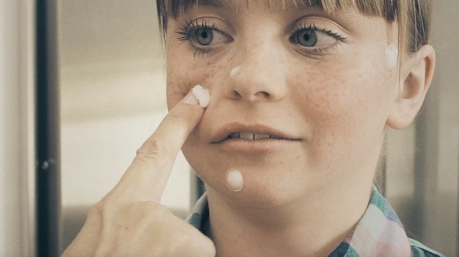 """Zits (EWWW!) pop n' play pimples aims to move to the """"whitehead"""" of the pack when it comes to gross toys Just press them on, squeeze, and gross out everyone around!"""