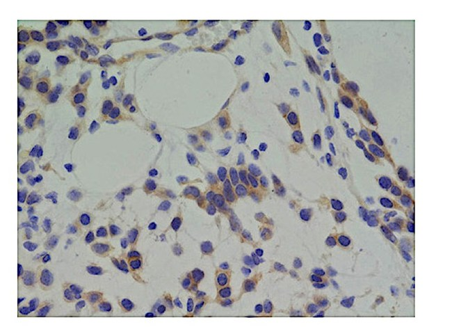 Immunodetection of IR/IGF1R (brown cells) in a high-grade glioma tumor after targeted therapy indicating insulin pathway activity in tumor cells surviving targeted therapy.