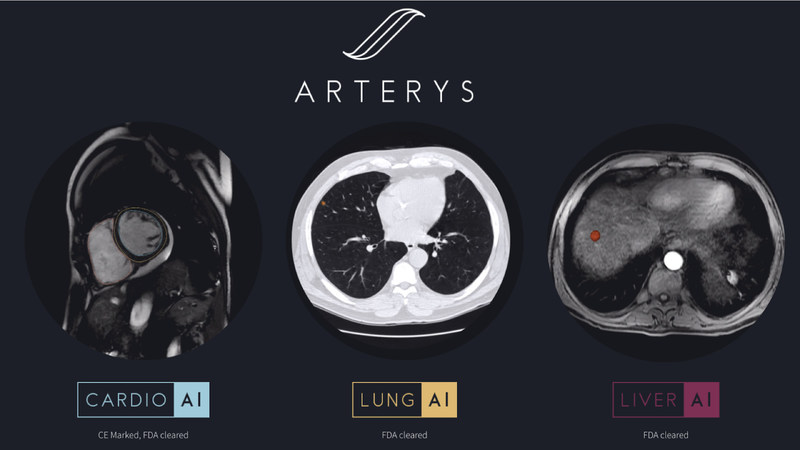 Arterys expands its clinical offerings with two new AI-powered workflows for medical imaging interpretation