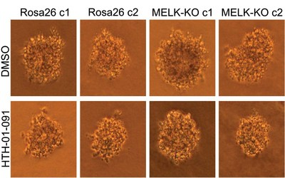 The growth of human colon cancer cells (raised in culture) is unaffected by presence or absence of MELK. Top row: untreated cells; bottom row: cells treated with a MELK inhibitor. Left two columns, control cells; right two columns, cells in which MELK gene has been knocked out. CSHL researchers conclude that MELK is not involved in cancer proliferation.