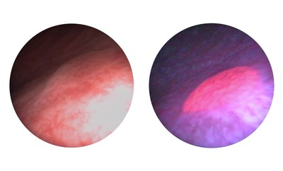 White-light cystoscopy (WLC) compared to Blue-Light Cystoscopy (BLC) with Cysview