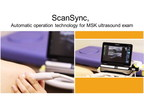 Hitachi's ScanSync auto-detects transducer movement to freeze, store, and unfreeze images (restart real-time image display). (PRNewsfoto/Hitachi Medical Systems Europe)