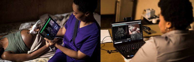 Lumify with Reacts brings experts into an ultrasound exam, no matter the distance, allowing a midwife in a remote location to call upon an obstetrician to provide perspective and guidance as though they were in the same room.