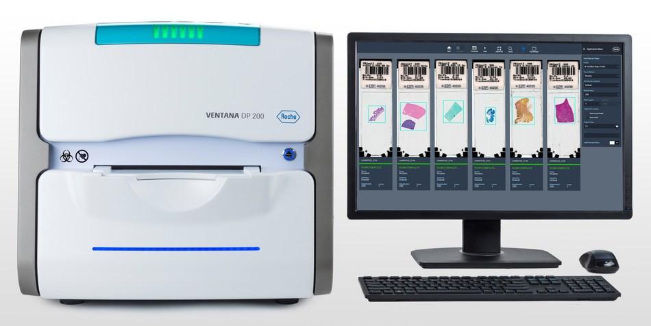 VENTANA DP 200 slide scanner