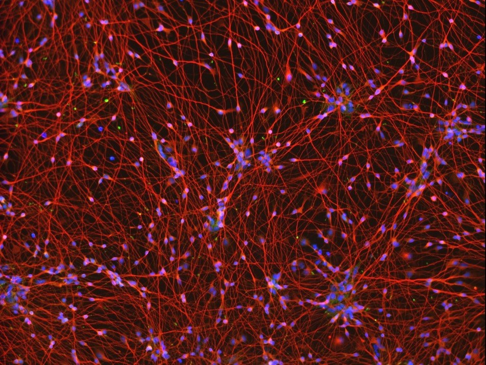 Neurons directly differentiated from iPSCs, day 5