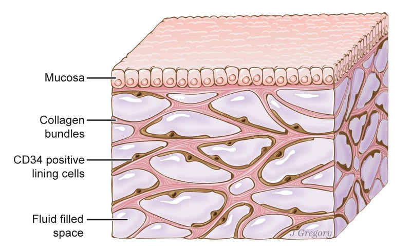 A newfound organ, the interstitium, is seen here beneath the top layer of skin, but is also in tissue layers lining the gut, lungs and urinary systems, as well as those surrounding blood vessels and the fascia between muscles. The organ is a body-wide network of interconnected, fluid-filled compartments that may keep tissues from tearing as they flex. Illustration by Jill Gregory. Printed w/ permission from Mount Sinai Health System, licensed under CC-BY-ND.