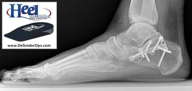 Podiatrist Dr. Jason Hanft crushed his heel and invented a new heel orthotic to relieve his heel pain.