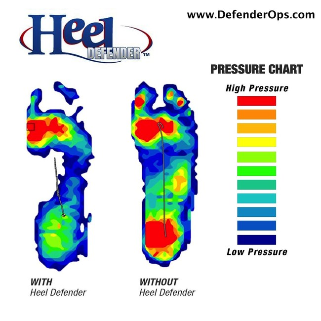 Heel Defender is shown to be highly effective at offloading pressure off the heel. As shown in the pressure chart, the foot on the left experiences less pressure on the heel using Heel Defender, versus without it.