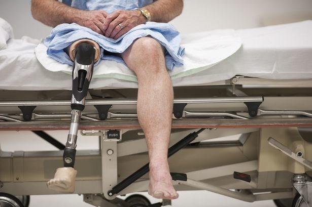 Below the Knee Leg Amputation