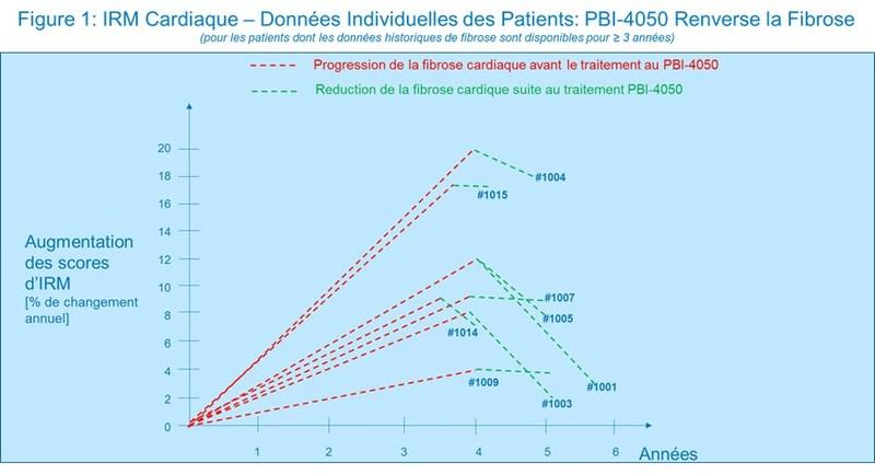 Figure 1 : IRM Cardiaque - Données Individuelles des Patients : PBI-4050 Renverse la Fibrose (Groupe CNW/ProMetic Sciences de la Vie Inc.)