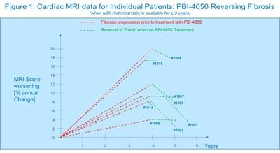 Figure 1: Cardiac MRI data for Individual Patients: PBI-4050 Reversing Fibrosis (CNW Group/ProMetic Life Sciences Inc.)