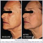 Une étude clinique multicentrique en double aveugle confirme que DefenAge® est la meilleure solution anti-vieilissement de sa catégorie, en faisant reculer le temps de manière naturelle
