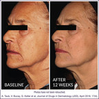 Multi-Center, Double-Blind Clinical Study Validates DefenAge® As A Best-In-Class Anti-Aging Solution, Naturally Turning Back The Clock