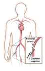 Angiograms and Angioplasty - Using your body's vascular highway to identify and treat blockages