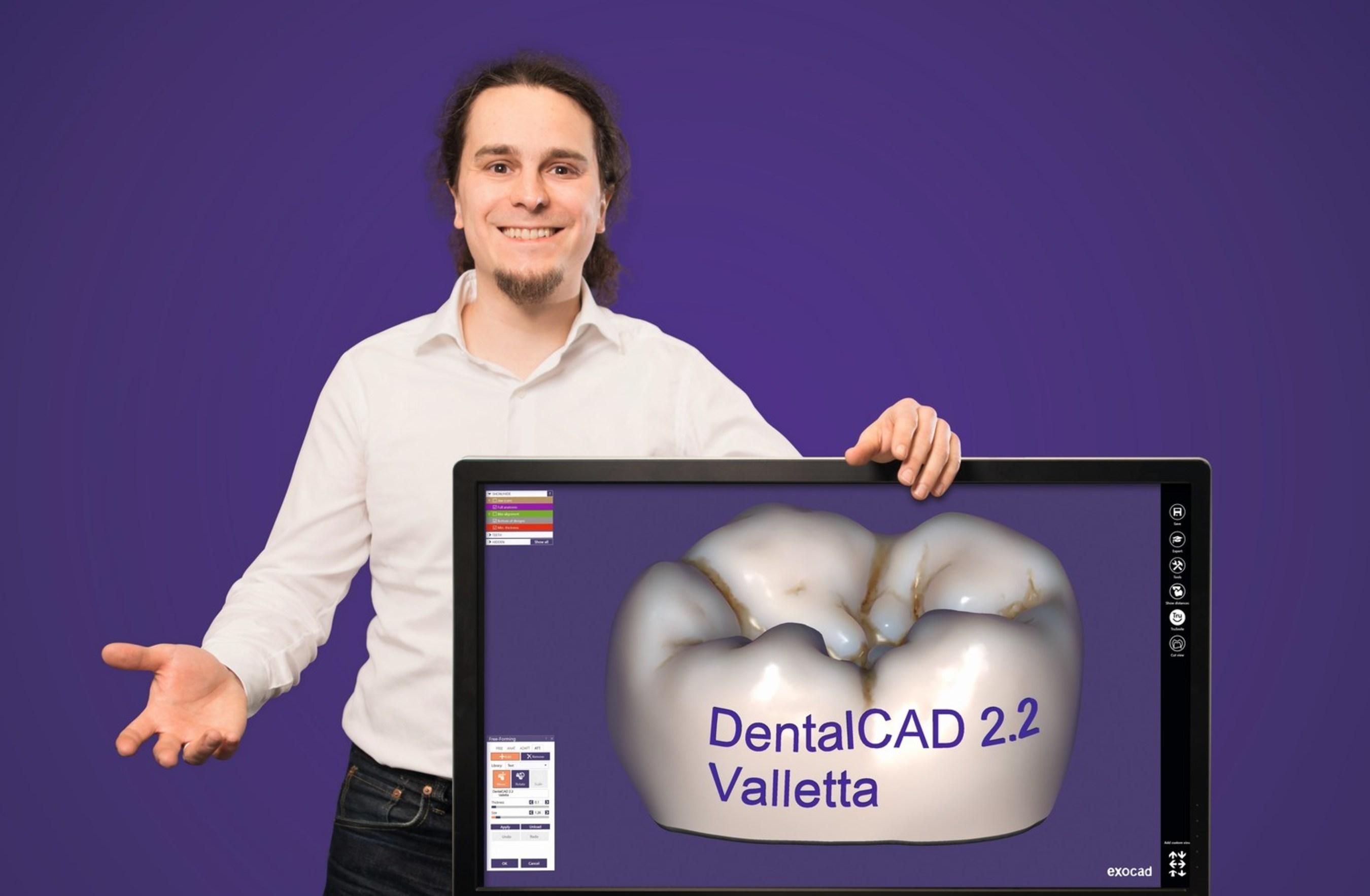 exocad releases new DentalCAD 2 2 Valletta - largest