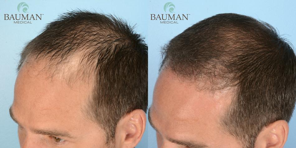 Bauman Medical: Before & 12 Months After SmartGraft FUE