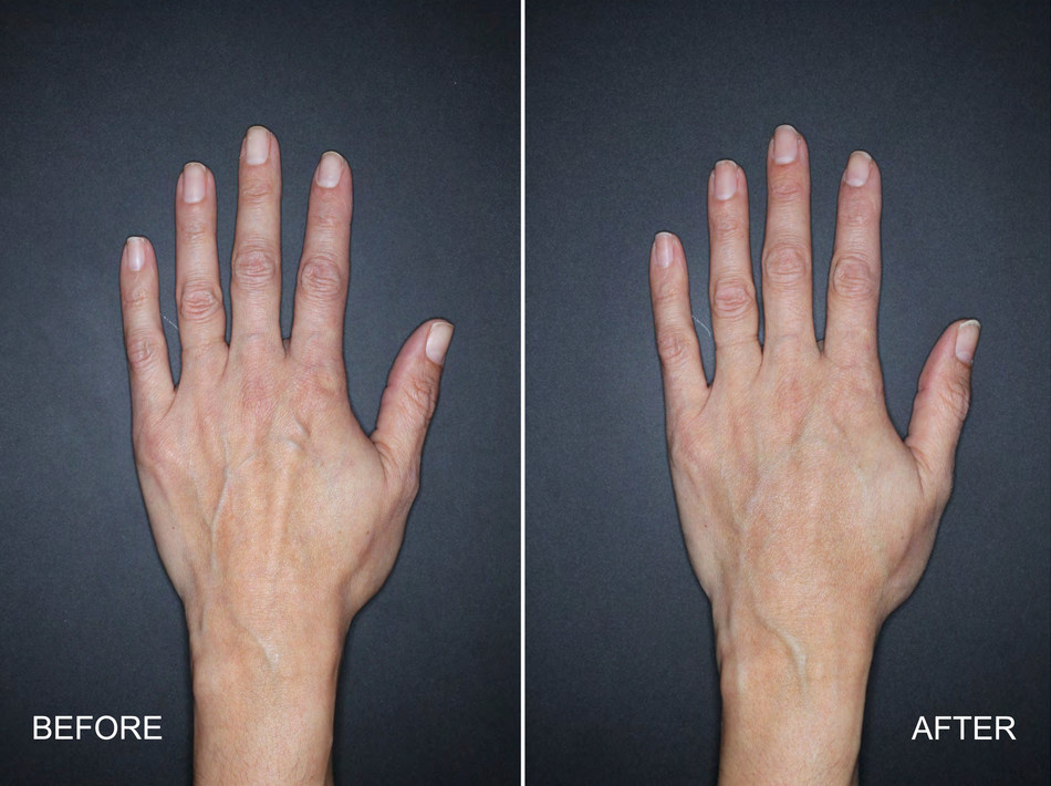 Actual user*. Individual results may vary. Treated with 3mL of Restylane Lyft in the left hand. 4 weeks after treatment. *user = clinical trial subject