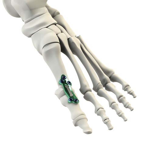 MPJ Active Stabilization Implant System - *Patents Pending Worldwide