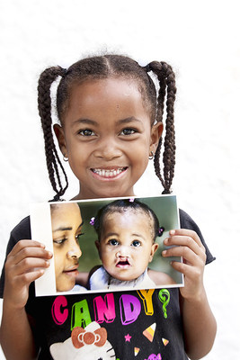 SMILE (CNW Group/Operation Smile Canada)
