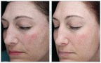 Patients worldwide are asking for Halo Hybrid Fractional treatments by name, and that trend continues to grow daily. Most recently HALO won NewBeauty Magazine's Beauty Choice Awards for best anti-aging laser treatment for a 3rd year running.
