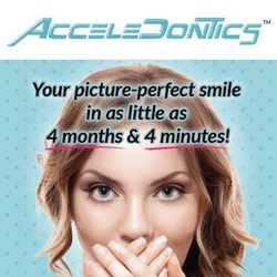 Acceledontics Provides You With A Picture-Perfect Smile In As Little As 4 Months & 4 Minutes