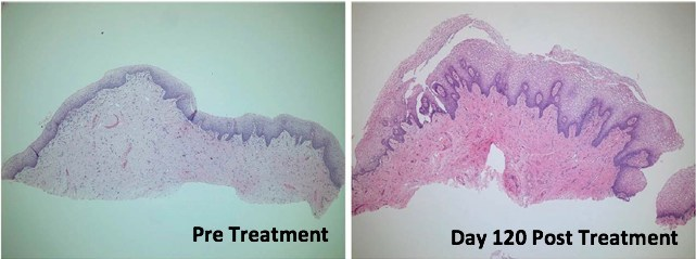 Histology of the vaginal canal mucosa before (left) and at Day 120 after (right) treatment with TTCRF. Post treatment, there was improvement in mucosal maturation with increased number of cell layers, increased papillary dermis, no flattening of the rete ridges, improved glycogenation, and denser stroma. Hematoxylin and eosin, 100X. TTCRF, transcutaneous temperature-controlled radiofrequency. (Photo courtesy of Dermatologic Surgery)