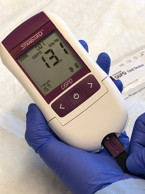 The STANDARD G6PD Test is a low-cost, simple device developed to guide treatment of patients with malaria and support malaria elimination programs. Photo: SD BIOSENSOR/PATH