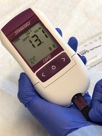 The STANDARD G6PD Test is a low-cost, simple device developed to guide treatment of patients with malaria and support malaria elimination programs. Photo: SD BIOSENSOR/PATH (PRNewsfoto/PATH)