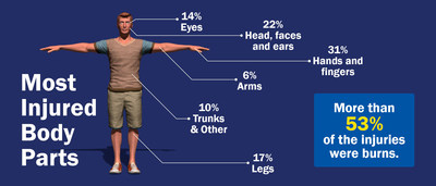 English - Most Injured Body Parts