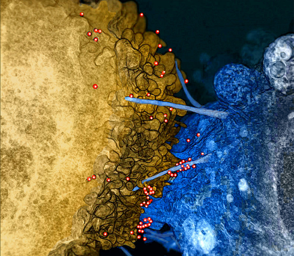 HIV on Bridges Between Infected Immune Cell and Uninfected Brain Cell (PRNewsfoto/NUST MISiS)