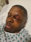 """Man Injured From Fireworks Offers Advice This 4th Of July Holiday: """"Don't Take The Risk - I Felt Like My Face Was Blown Off"""""""