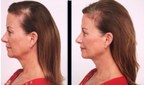 SeroVital™ Hair Regeneres™ Releases Results of Consumer Experience Test That Shows Gray Hair Reversal and Hair Growth‡
