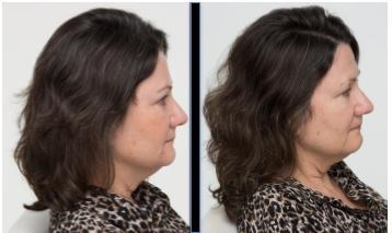 """SUBJECT 2: """"I feel like I'm turning back the clock. I had a fair amount of gray hair that was making me feel older. This has reversed it; I barely see it anymore."""" - Doreen S., age 49, day 1 and day 90"""