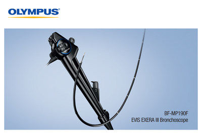Olympus announced today FDA clearance of its BF-MP190F, a fully rotatable, ultra-slim bronchoscope featuring an optimal ratio of working channel to outer diameter size, compatible with the radial endobronchial ultrasound probe & an array of sampling devices to expand access to smaller, more distal airways. The BF-MP190F's ratio of a 1.7 mm working channel to 3.0 mm distal-end outer diameter provides pulmonologists with benefits during access, sampling & diagnosis of lung diseases such as cancer.