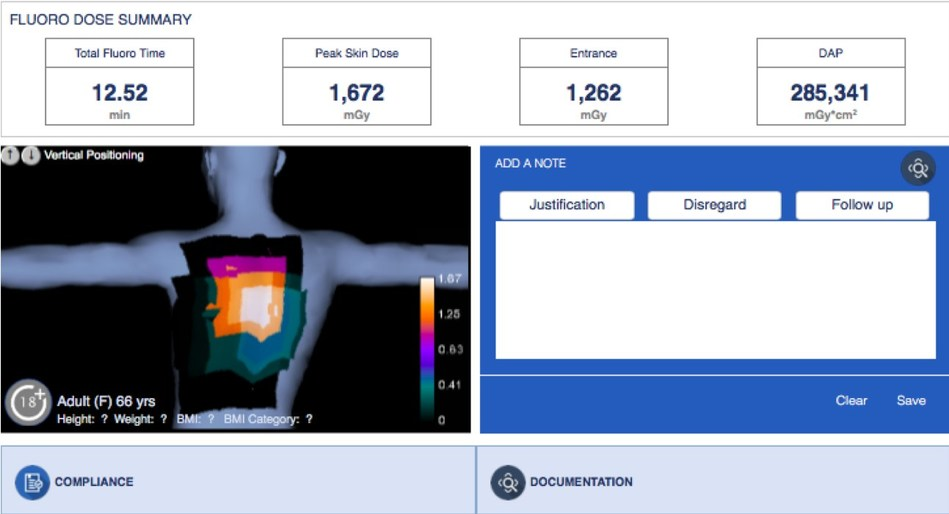 Calculate peak skin dose instantly with Imalogix